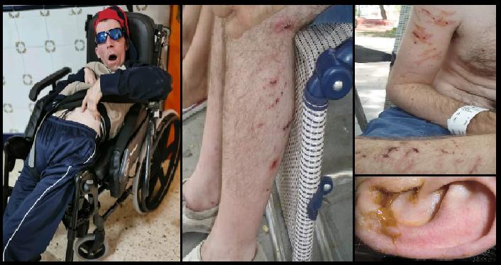 Heridas de Juanjo, mal cuidado